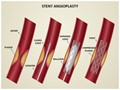 Coronary Stent Editable PowerPoint Template