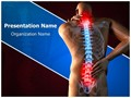 Spinal Pain Editable PowerPoint Template