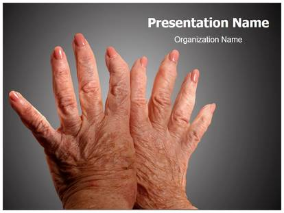 Free arthritis medical powerpoint template for medical powerpoint arthritis powerpoint template toneelgroepblik Image collections