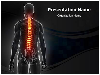 Free osteoporosis medical powerpoint template for medical powerpoint osteoporosis powerpoint template toneelgroepblik Image collections