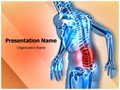 Back Pain Editable PowerPoint Template