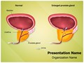 Benign Prostatic Hyperplasia Editable PowerPoint Template