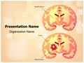 Brain Tumor Editable PowerPoint Template