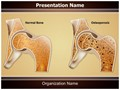 Osteopathy Osteoporosis Editable PowerPoint Template