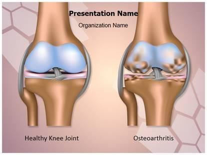 Free knee joint osteoarthritis medical powerpoint template for knee joint osteoarthritis powerpoint template toneelgroepblik Images
