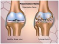 Knee Joint Osteoarthritis Editable PowerPoint Template