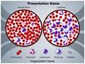 Leukemia Diagnosis Editable PowerPoint Template