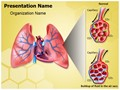 Pulmonary Edema Editable PowerPoint Template