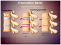 Spine Ankylosing Spondylitis Editable PowerPoint Template