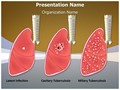 Tuberculosis Types Editable PowerPoint Template