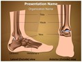 Metatarsal Ankle Joint Editable PowerPoint Template