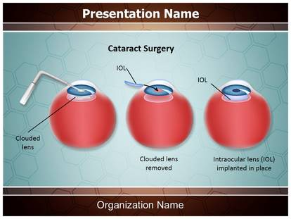 Free ophthalmology cataract surgery medical powerpoint template for free ophthalmology cataract surgery medical powerpoint template for medical powerpoint presentations toneelgroepblik Images