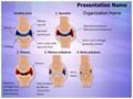 Synovial Rheumatoid Arthritis Stages Editable PowerPoint Template