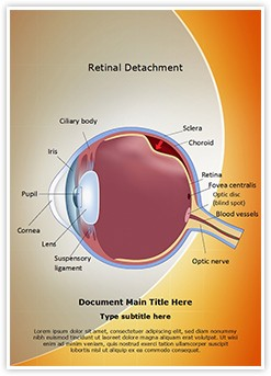 Retinal detachment Editable Word Template