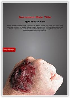 Burned Hand Editable Word Template