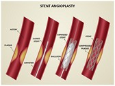Coronary Stent PowerPoint Templates