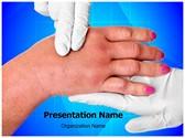 swollen hand Template