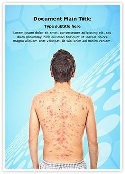 Chickenpox rash Editable Word Template