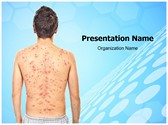 Chickenpox Rash PowerPoint Templates