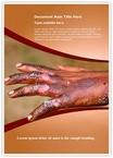 Burn Injuries Word Templates