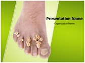 Foot Mycosis Template