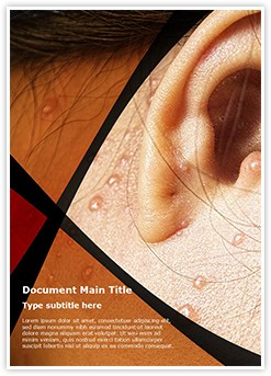 Chicken Pox Behind Ears Editable Word Template