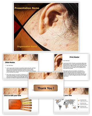 Chicken Pox Behind Ears Editable PowerPoint Template