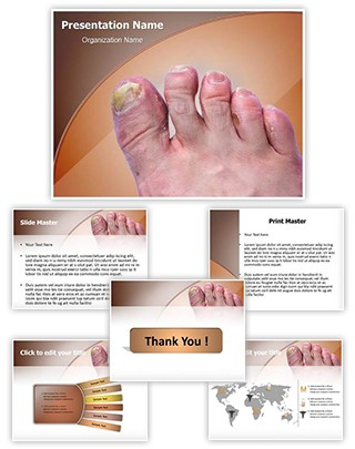 Toenail Mycosis Editable PowerPoint Template