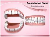 Dental Openbite