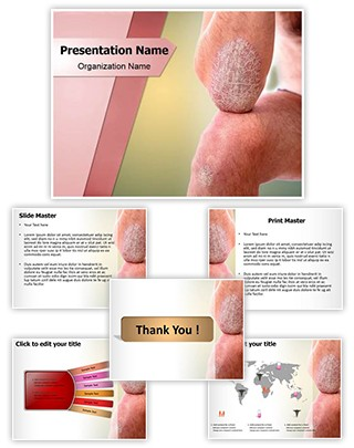 Psoriasis on Arms Editable PowerPoint Template