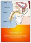 Catheter Male