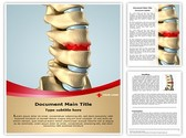 Disc Osteophyte Formation Template