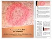 Lyme Disease Editable Word Template