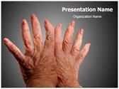 Arthritis PowerPoint Templates