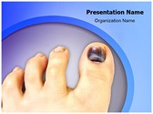 Nail Hematoma Editable PowerPoint Template