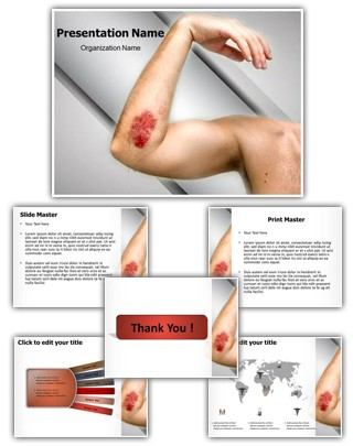 Abrasion Editable PowerPoint Template