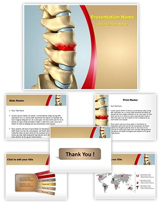 Disc Osteophyte Formation Editable PowerPoint Template