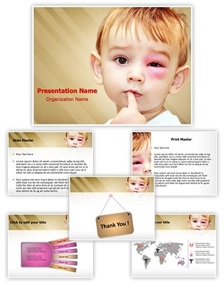 Wasps Stings Infection Editable PowerPoint Template