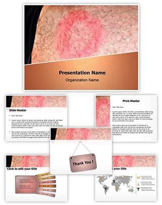 Lyme Disease Editable PowerPoint Template