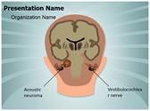 Acoustic Neuroma Vestibulocochlear Nerve Template