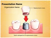Dental Crown Procedure Template