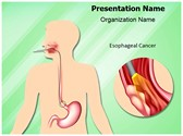 Esophageal Cancer PowerPoint Templates