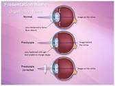 Optometrist Presbyopia