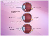 Optometrist Presbyopia PowerPoint Templates