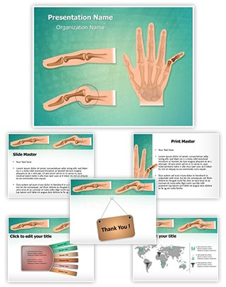 Orthopedic Finger Dislocation Editable PowerPoint Template
