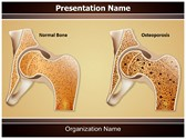 Osteopathy Osteoporosis