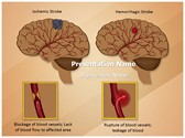Ischemic Hemorrhagic Brain Stroke PowerPoint Templates