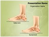 Pes Planus Flat Foot