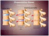 Spine Ankylosing Spondylitis