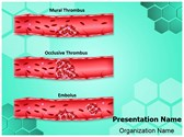 Thrombosis Types PowerPoint Templates